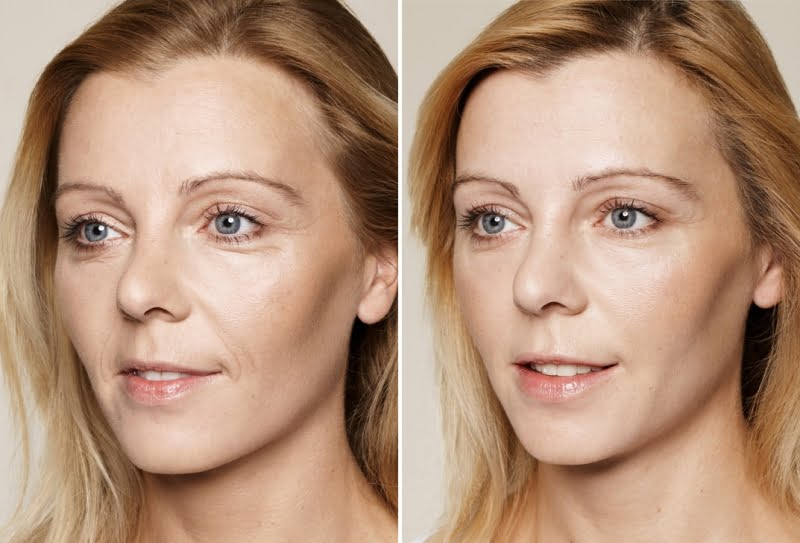 Rimpelbehandeling gezicht